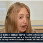 Close-up of Emily Cihla speaking to a television news reporter about her Treacher Collins Syndrome