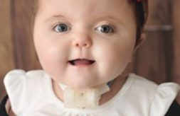 smiling portrait of a young girl with a tracheostomy